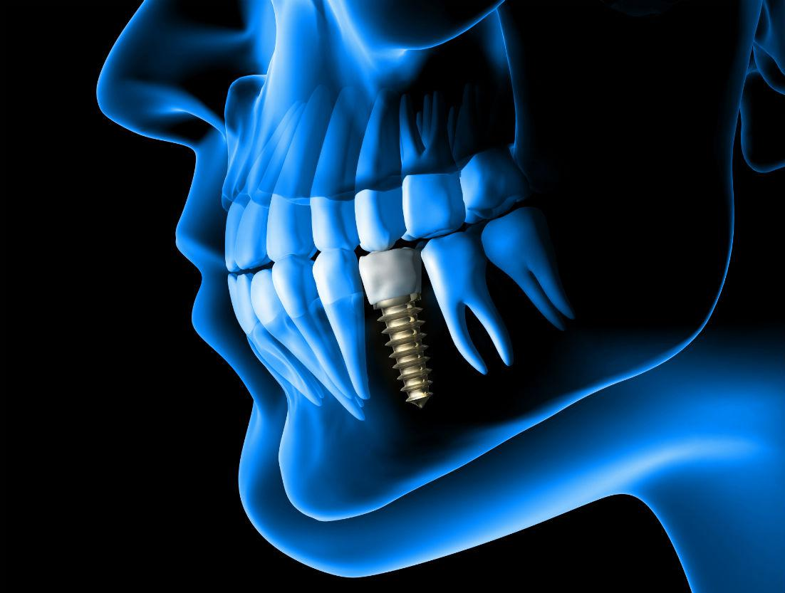 Dental Implants Calabasas & West Los Angeles