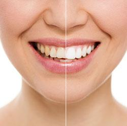 Teeth Whitening in Calabasas and West Los Angeles